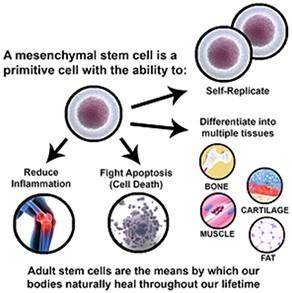 Stem Cell Treatment Austin | Texas Institute for Hip & Knee